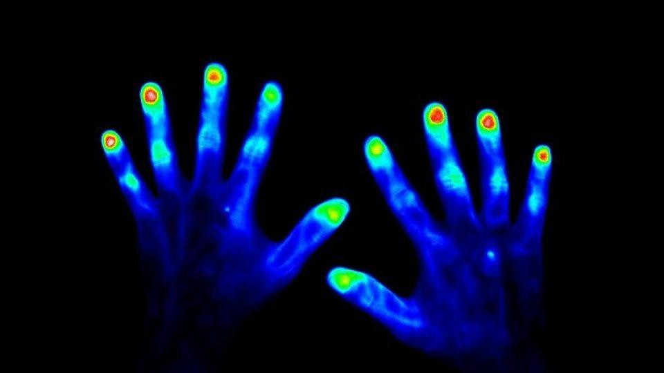 Zdravé ruce (45 vteřin po aplikaci kontrastního barviva)