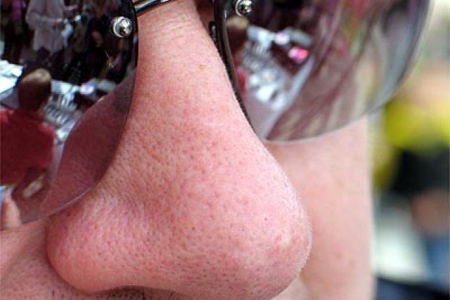 nos a brýle