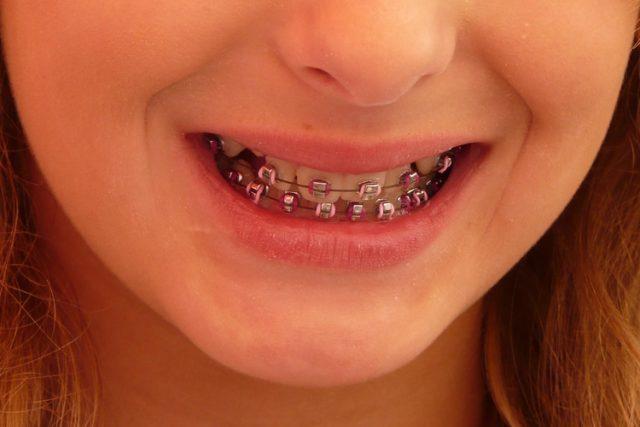 Zubní rovnátka: zdravotní pomůcka, nebo módní doplněk?