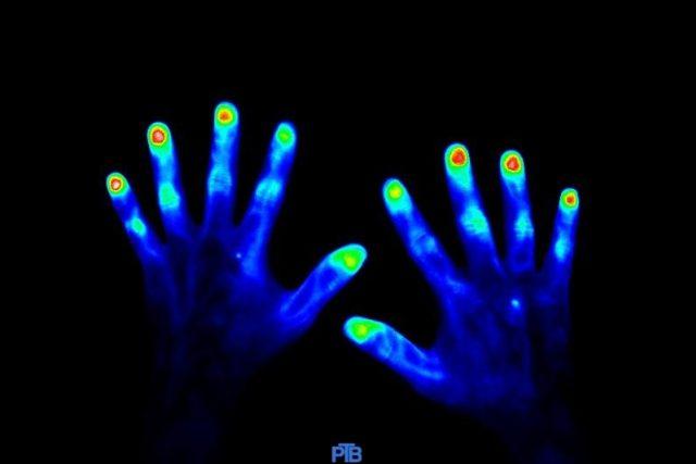 Zdravé ruce  (45 vteřin po aplikaci kontrastního barviva) | foto: Physikalisch-Technische Bundesanstalt