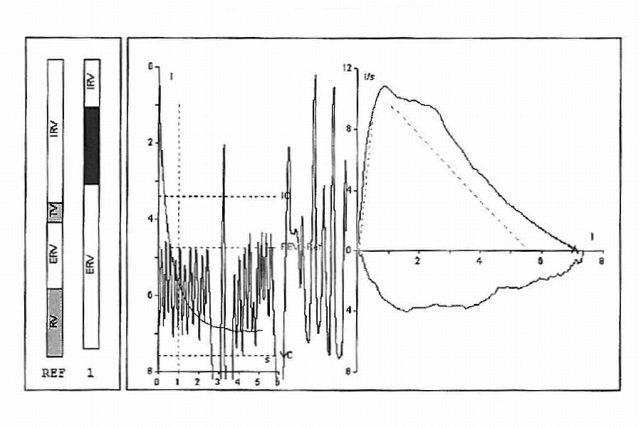 Záznam ze spirometrického vyšetření (pacient Martin Srb)