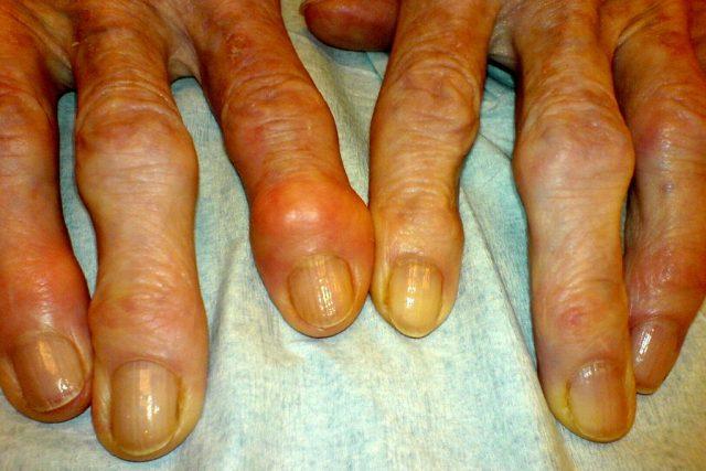 Artróza - deformity kloubů na prstech (Heberdenovy uzly)