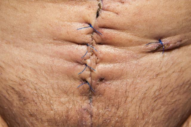 operace, jizva, břicho, stehy, medicína