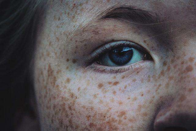 Pihy v obličeji | foto: Fotobanka Pixabay