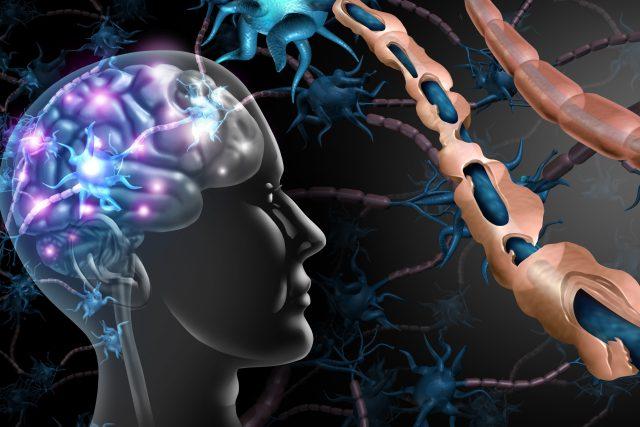 Porucha nervového systému (ilustrační foto)