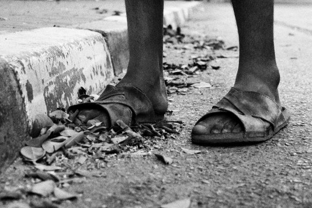 Chudoba, nohy