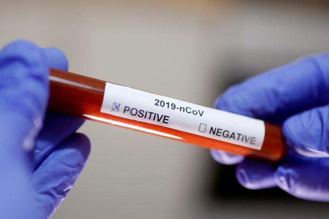 Test na koronavirus (archivní foto)